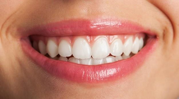 Zobni vsadki ali implantati