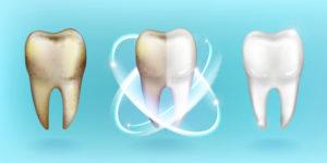 Profesionalna skrb za čudovite zobe